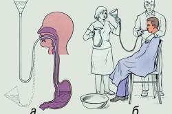 Промывание желудка при отравлении